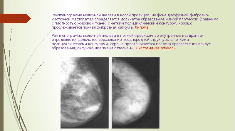 Маммографический метод исследования и рентген семиотика заболеваний молочных желез - презентация, доклад, проект