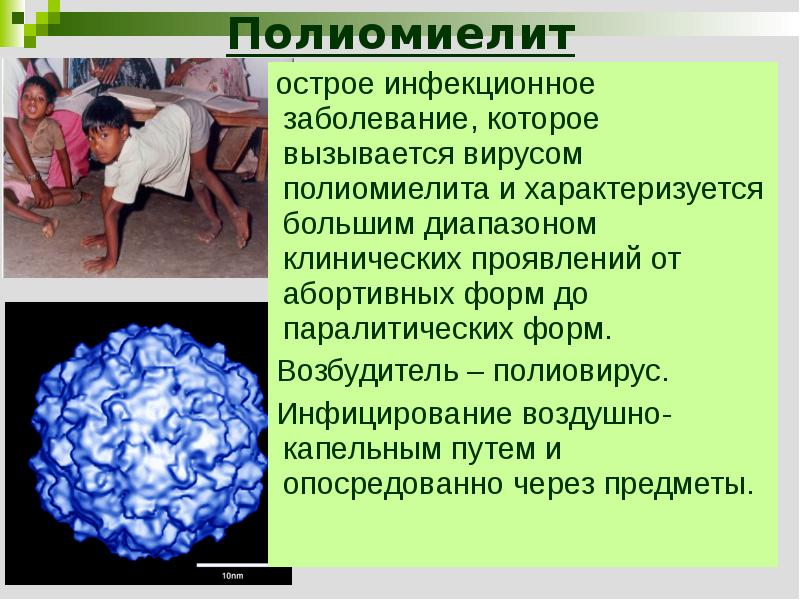 viral infectious diseasespolio or poliomyelitis Polio (poliomyelitis) is a highly contagious disease caused by a virus that is easily spread through close personal contact with an infected person or through contaminated food or water in some cases, it can lead to paralysis, respiratory failure and even death.