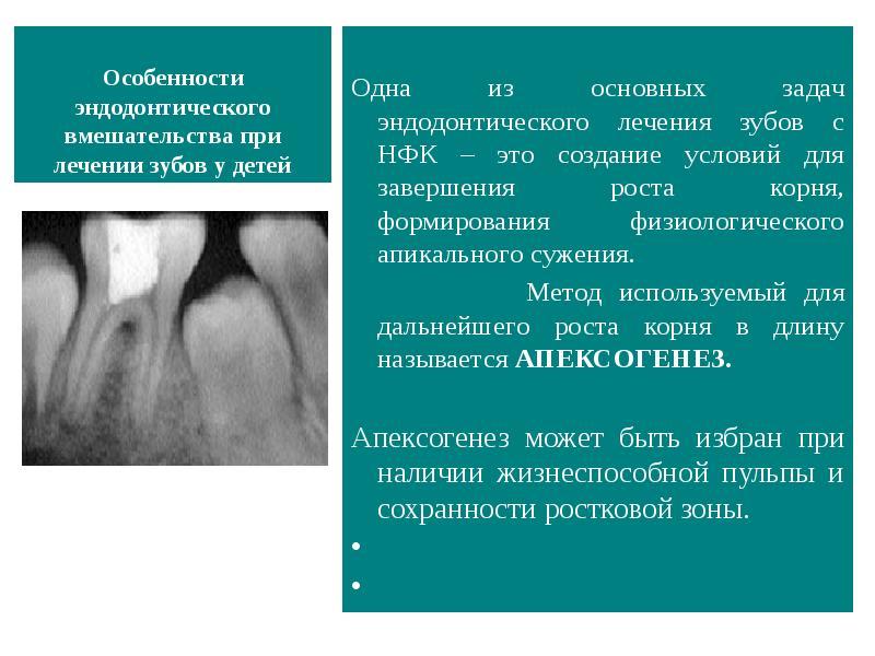 Методы эндодонтического лечения зубов