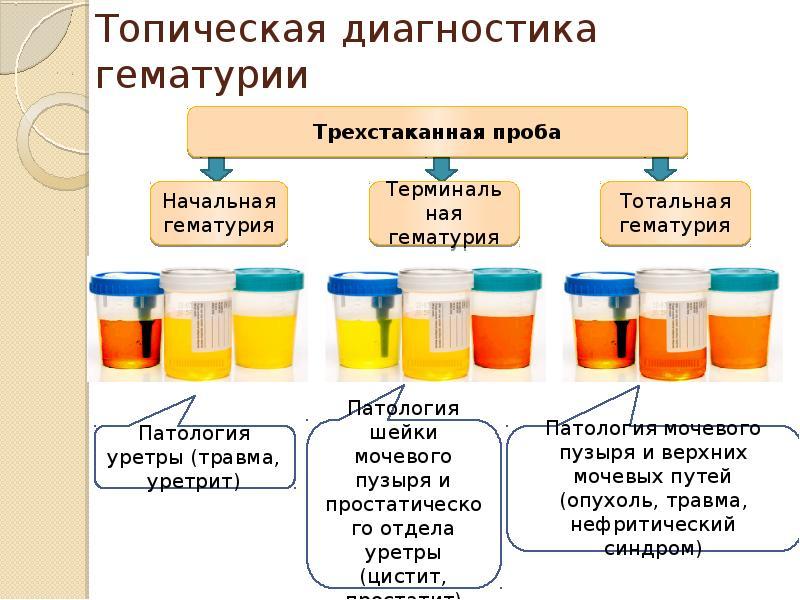 Гематурия при пиелонефрите