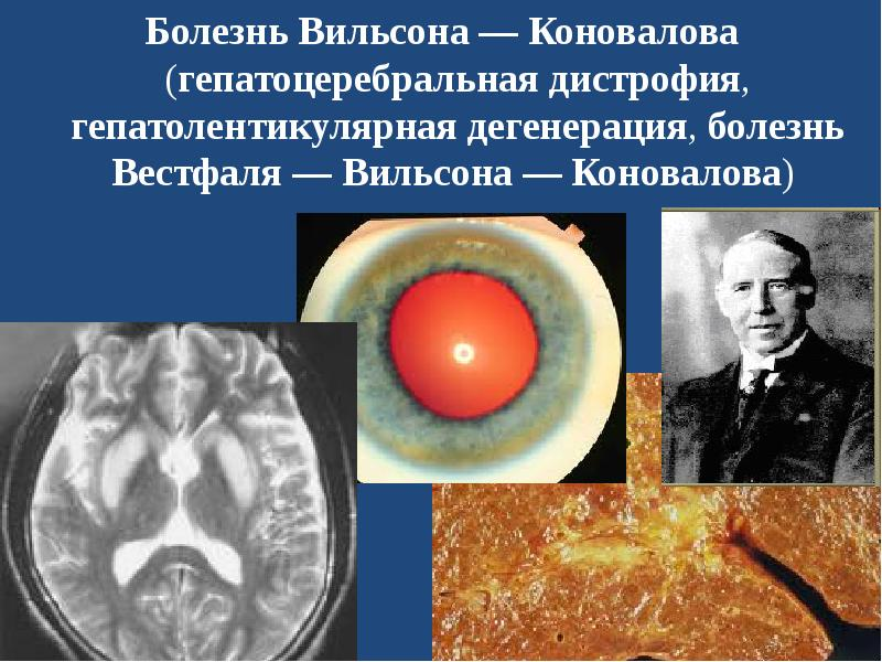 wilsons disease Define wilsons disease wilsons disease synonyms, wilsons disease pronunciation, wilsons disease translation, english dictionary definition of wilsons disease n a rare hereditary disease marked by copper accumulation in the brain and liver, leading to neurological damage and kidney malfunction.
