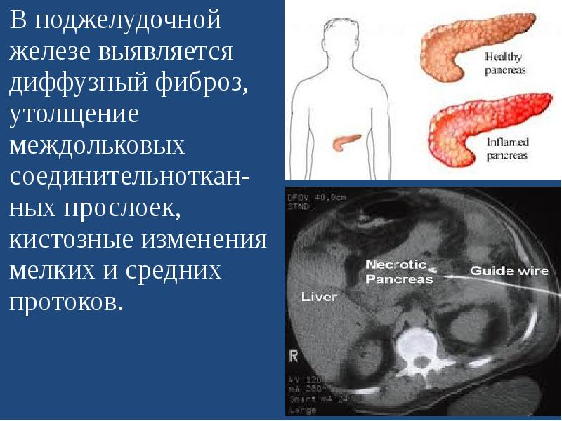 Небольшие диффузные изменения поджелудочной железы