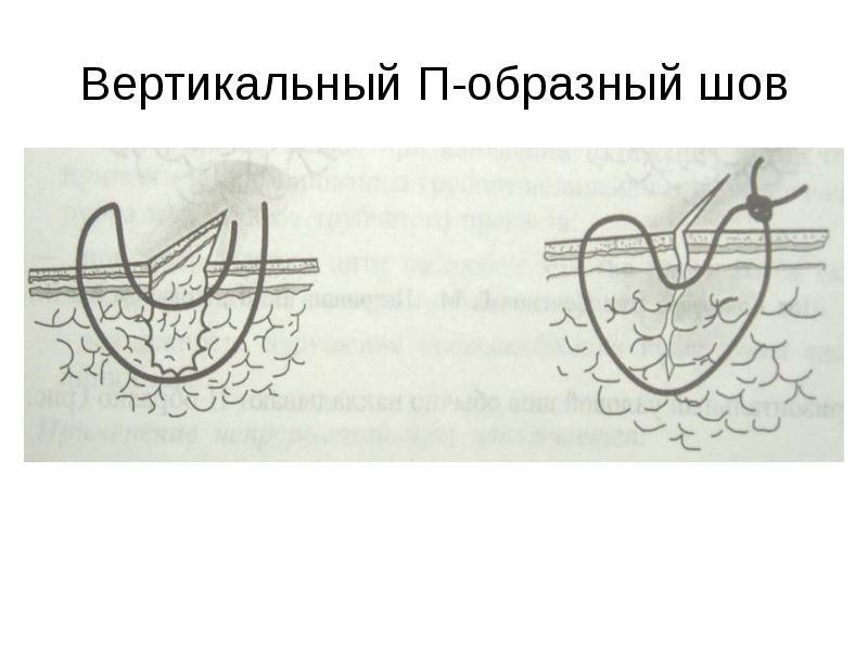 П образный шов картинка