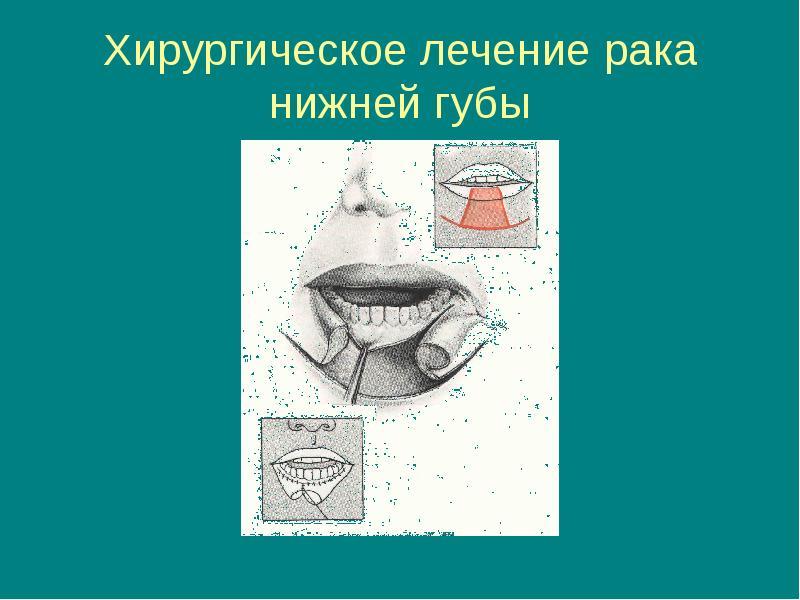 Вопрос № тема: рак нижней губы здравствуйте.