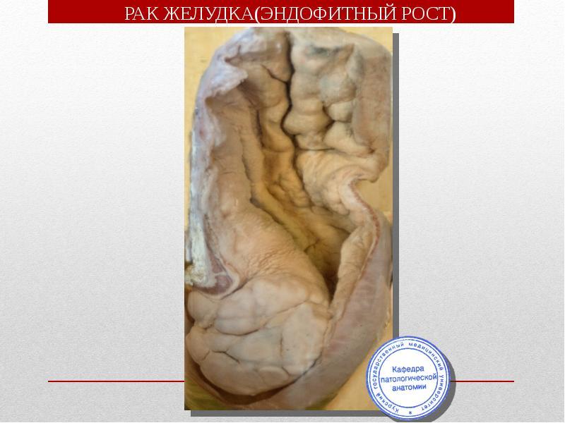 Макропрепараты патология шпаргалки