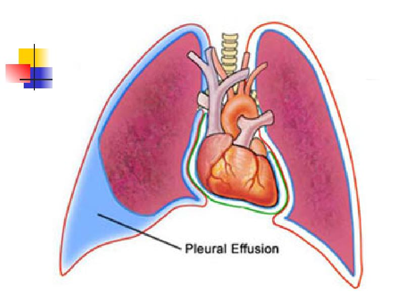 pleural effusion causes diagnosis and treatment - 520×453
