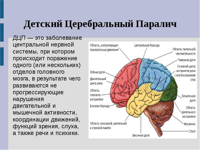 Сотрясение мозга при дцп