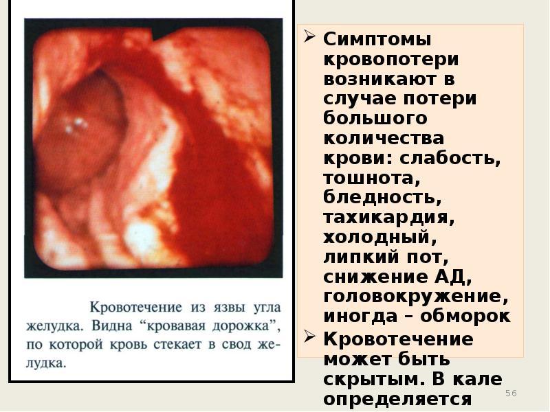 Язвенная болезнь желудка и двенадцатиперстной кишки у детей - презентация, доклад, проект