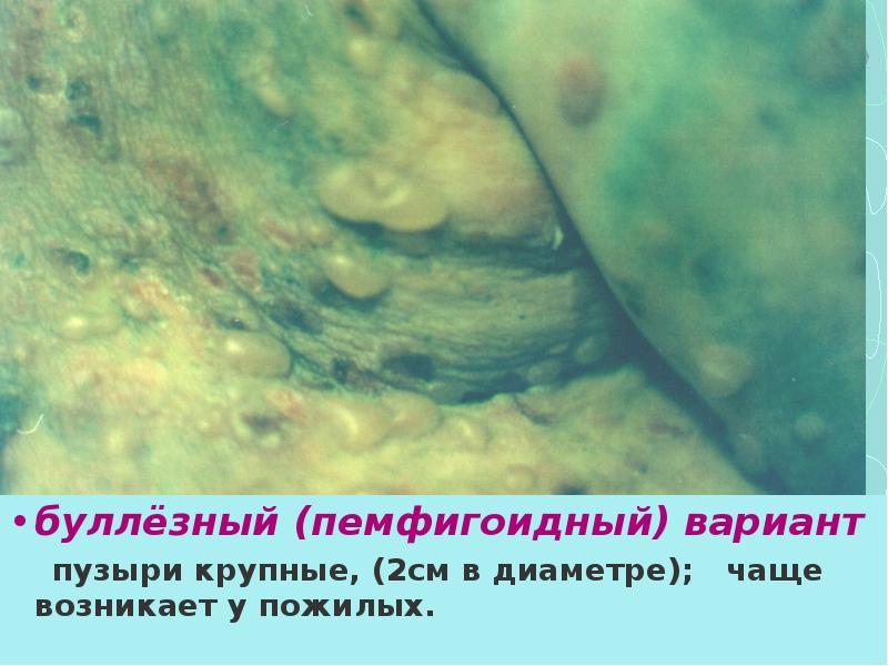 Лечение пузырных дерматозов