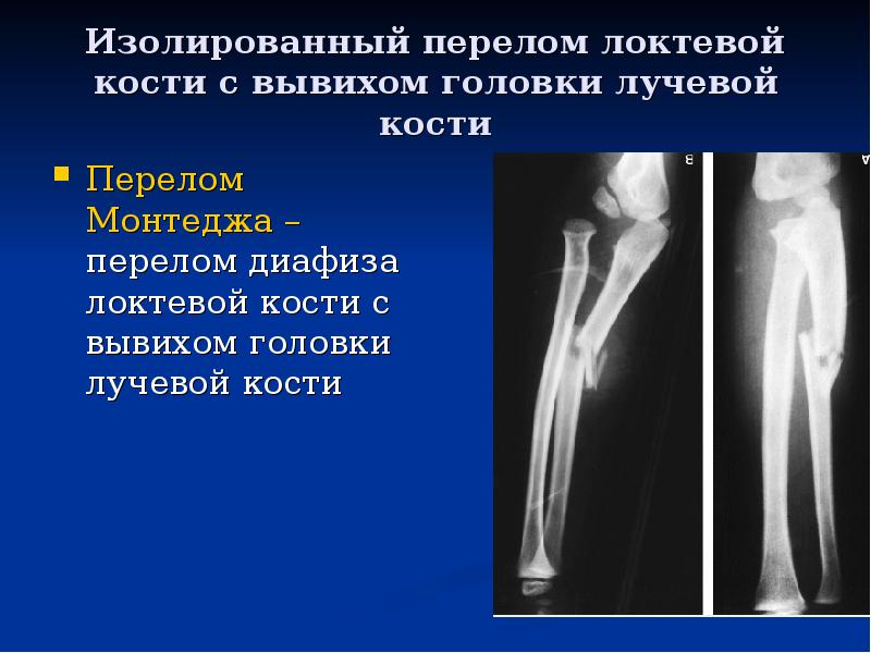 Перелом нижнего конца лучевой кости