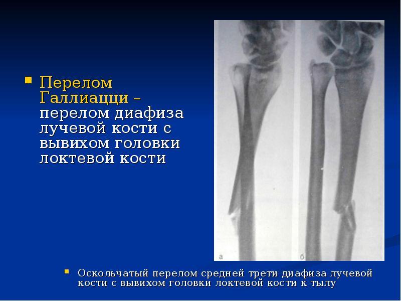 Перелом эпифиза плечевой кости