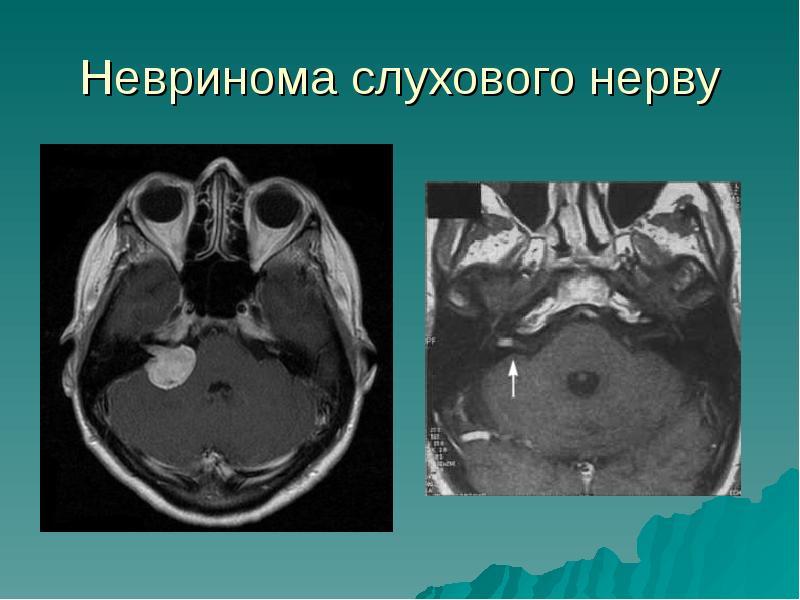 Питание при невриноме слухового нерва