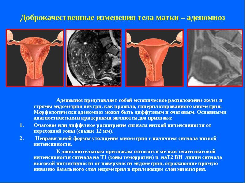 Возможности МР исследований в гинекологической практике - презентация, доклад, проект