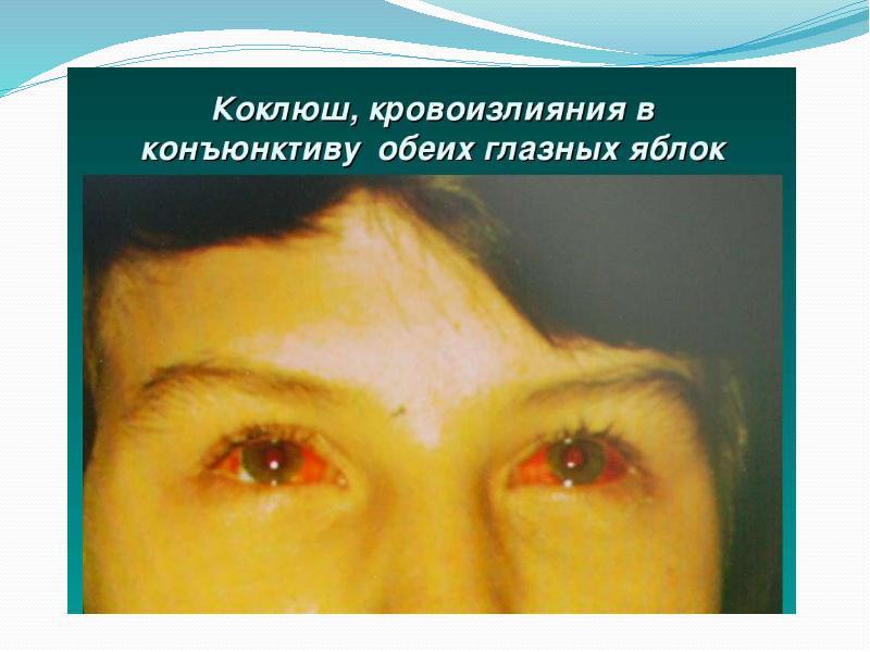 Конъюнктивит после прививки