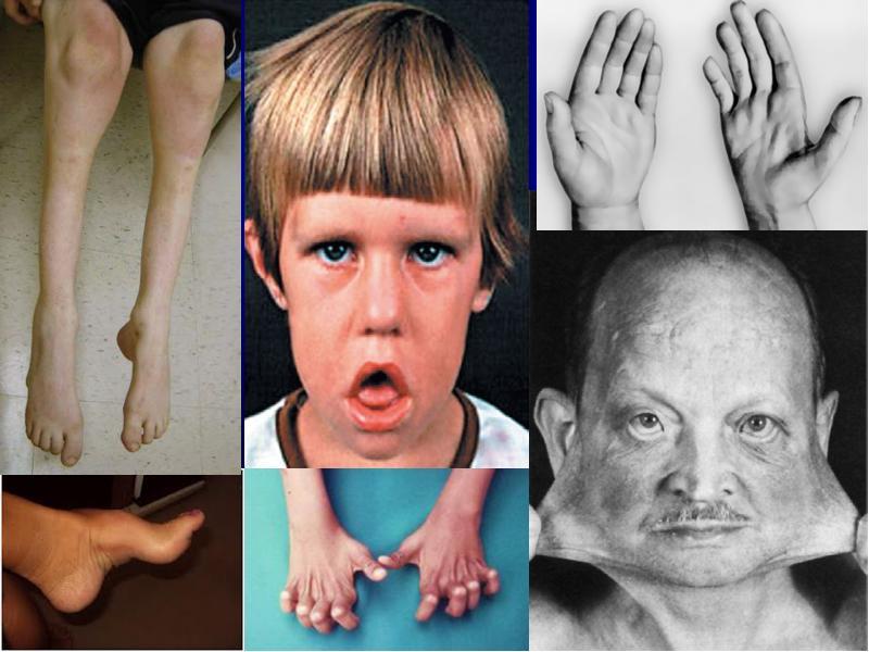 Наследственные патологии в картинках