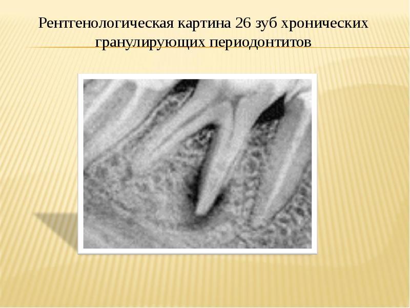 Анализ осложнений после операций удаления зубов