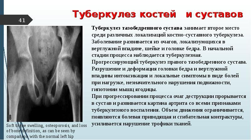 Инфекции Вызывающие Боль В Суставах