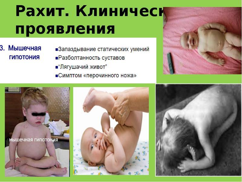 Как и чем лечить рахит у малышей