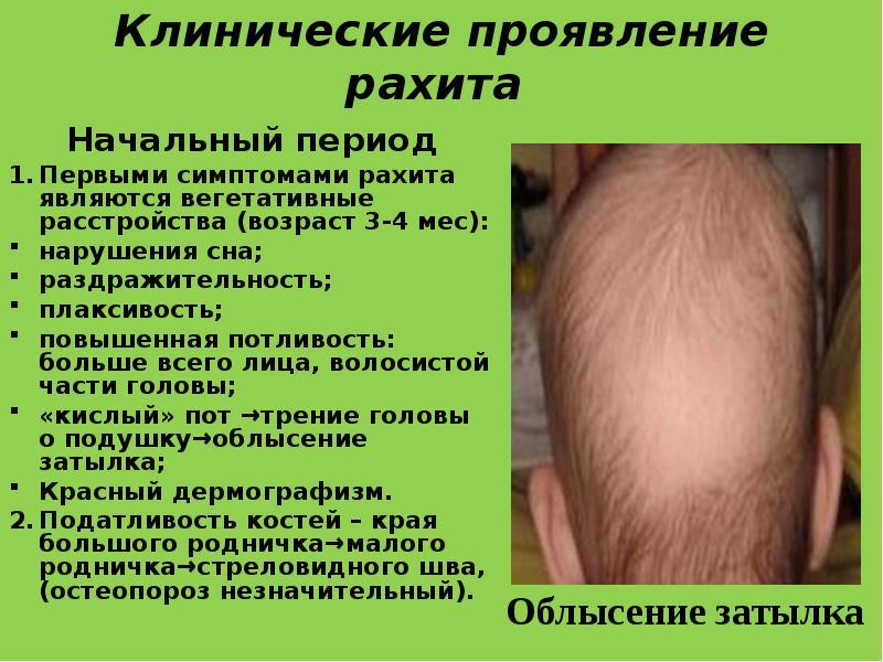 Рахит симптомы 3 месячный ребенок