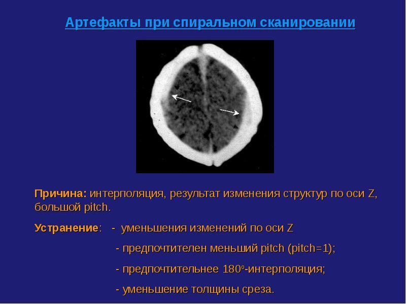 Компьютерная томография реферат