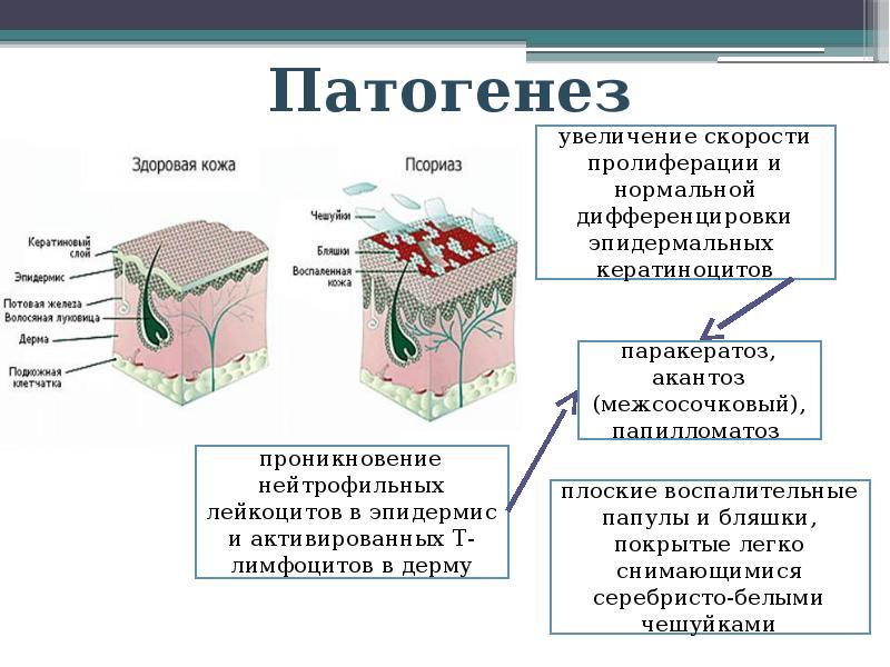 История Болезни Псориаз Зимняя Форма