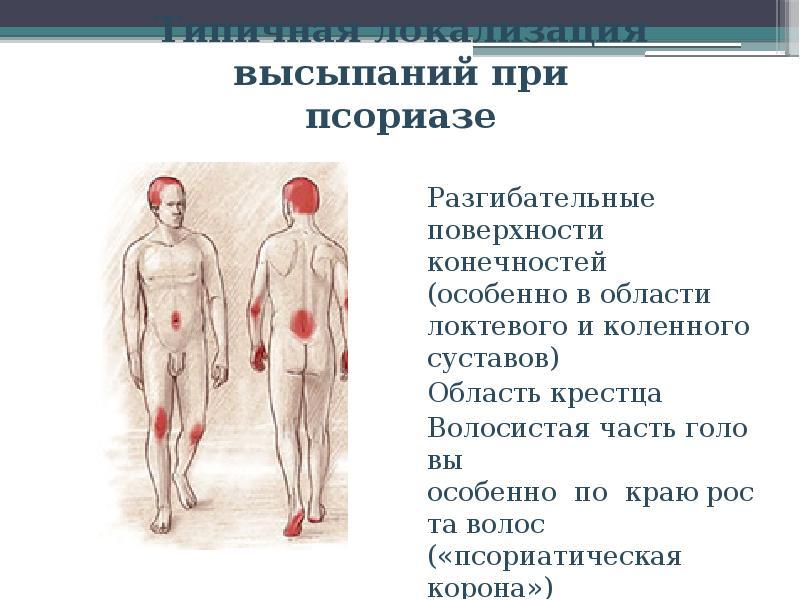 Псориаз На Ногтях Лечение Отзывы