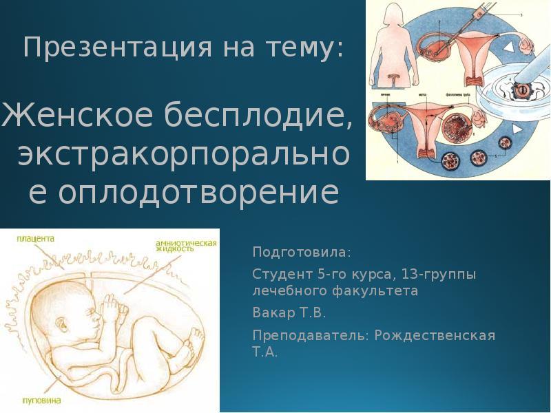 Доклад на тему экстракорпоральное оплодотворение 482