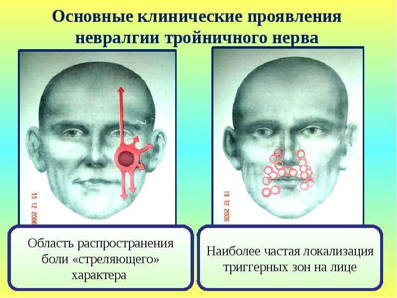 Опасно ли терпеть боль тройничного нерва