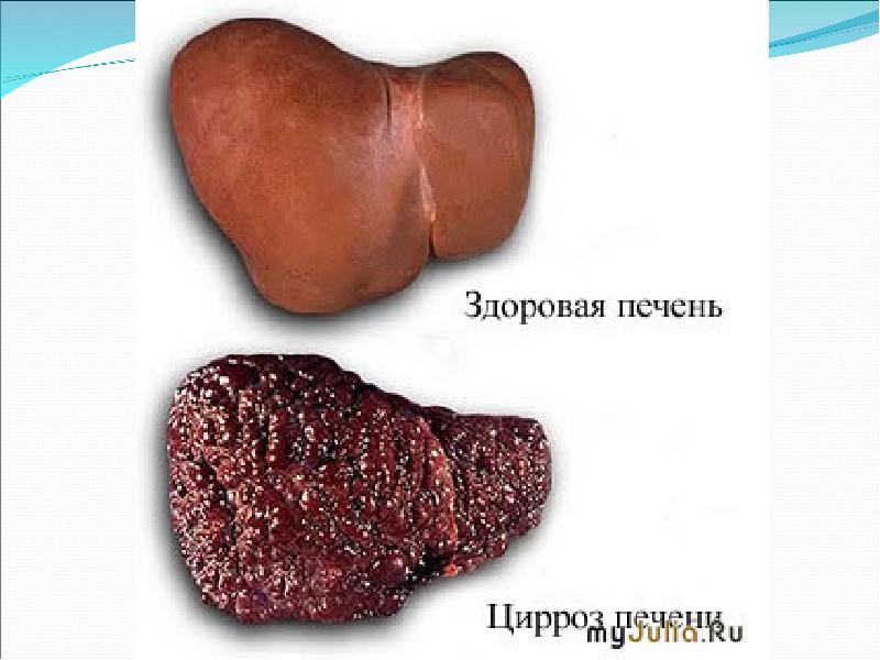 aids treatment liver damage - 960×720