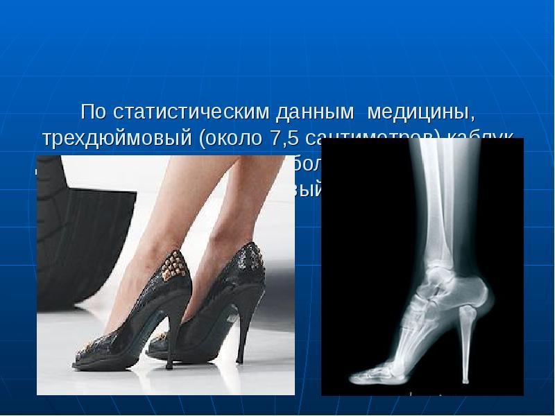 картинки о вреде каблуков ней отображается