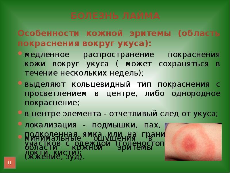Болезнь лайма реферат