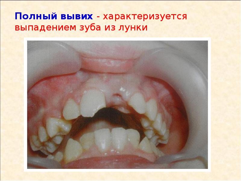 Картинки травма зубов